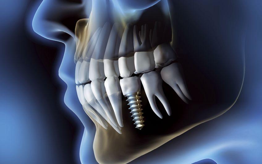 3-D-Technik für optimalen Zahnersatz